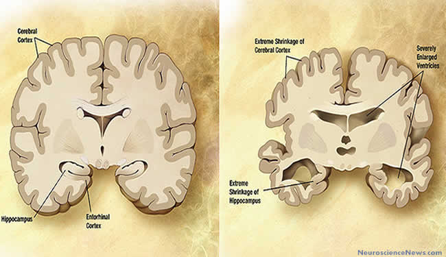 Illustrations of Alzheimer's brain vs brain. Labels are on the Alzheimer's brain image pointing out extreme shrinking of hippocampus and cerebral cortex and severely enlarged ventricles.