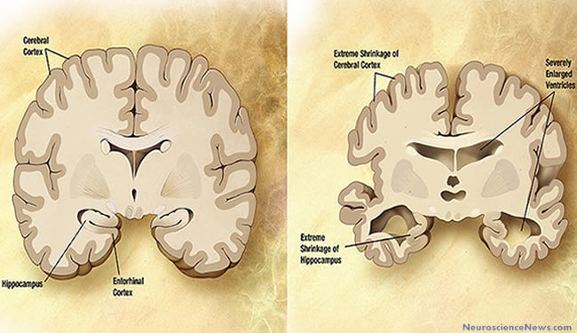 A healthy brain is shown next to a severely atrophied Alzheimer's disease brain with labels.