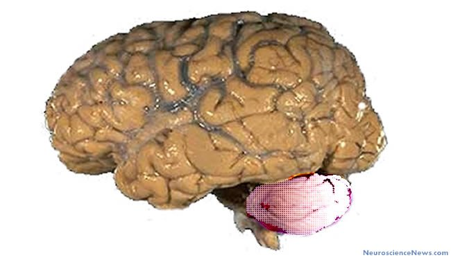 A human brain is shown with a cerebellum that has been graphically altered.