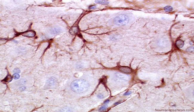 Astrocytes are shown in brain tissue.