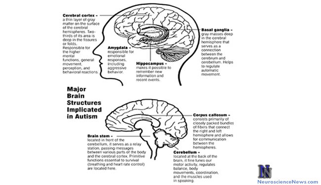 Major brain structures implicated in autism are shown.