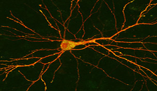 A neuron is shown with highlighted spots over cell surface.