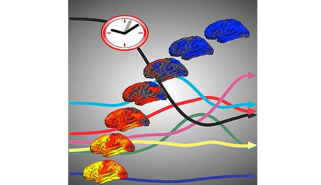 Brains and arrows are shown under a clock.