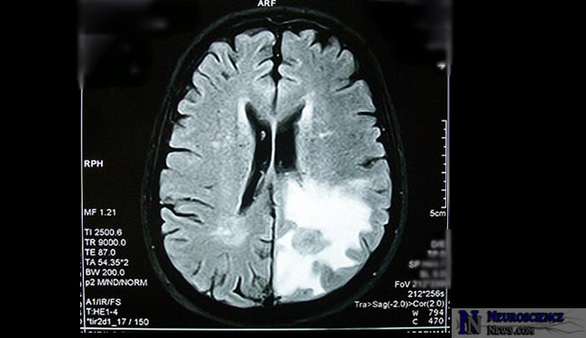 MRI of Brain Tumor