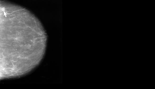 Breast Cancer Chemotherapy Alters Brain Tissue
