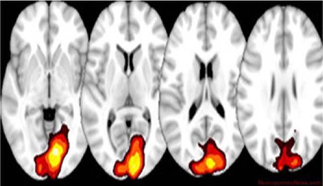 Four brain scans are shown. Caption explains findings.
