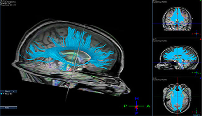 Diffusion tensor imaging is shown. The caption describes the scene.