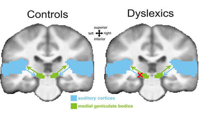 Image shows two brains with one labeled Controls and the other Dyslexics. Medial geniculate bodies and auditory cortices are labeled and highlighted. The Dyslexics brain image has an X mark between medial geniculate bodies and the auditory cortices highlight areas on the left side.