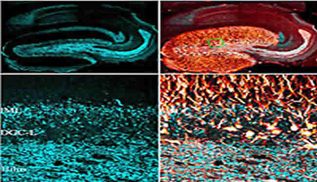 Confocal microscopic images of dentate gyrus granule cells involved in epilepsy are shown. Caption describes well.