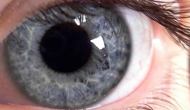 A human eye is shown.