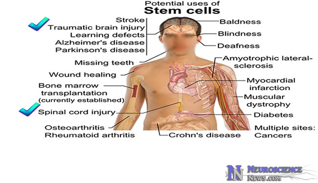 First Human Embryonic Stem Cell Therapy Clinical Trial
