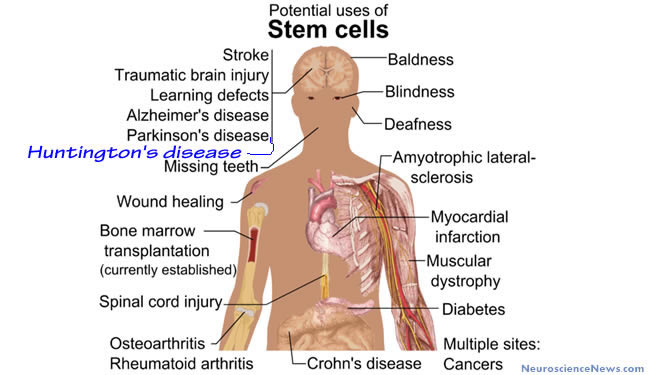 A drawing of a generic person with labels pointing toward areas that could be targeted in stem cell therapies.