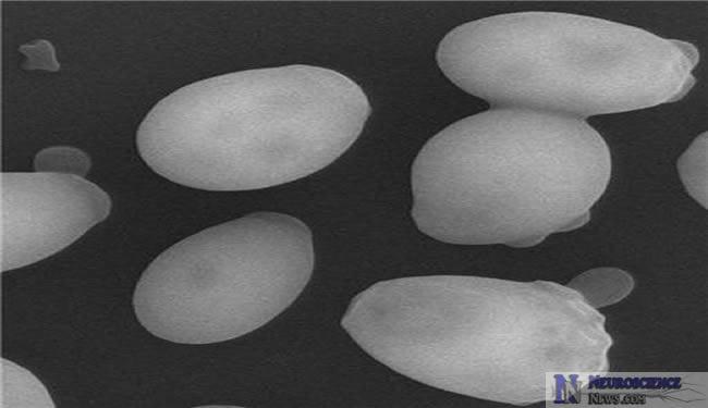 Yeast Helps Huntington's Disease Research