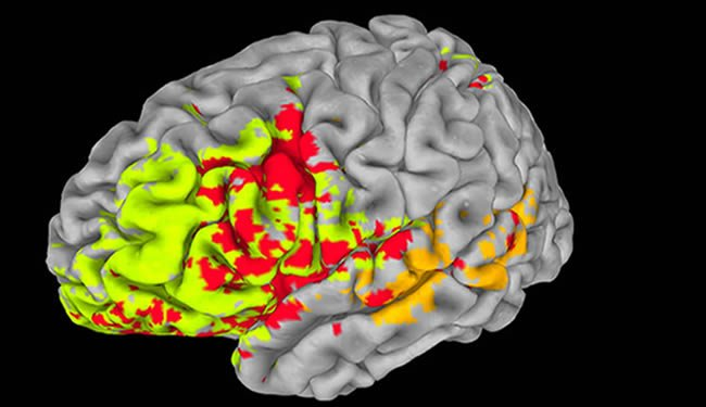 A brain is shown with highlighted regions.