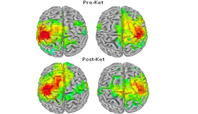 Pre-ket and Post-ket brain images.