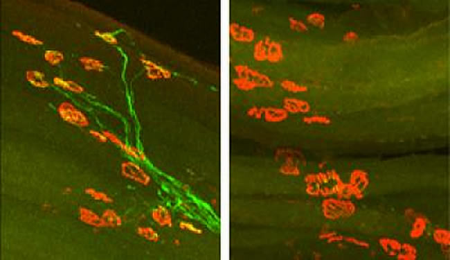Two image side by showing axon regrowth in the left panel and none in the right. The caption describes the scene well.