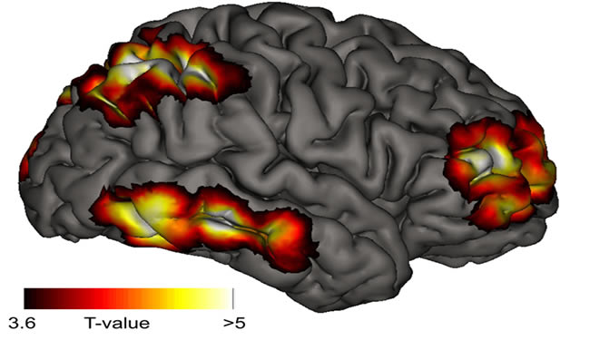 A brain image is shown with highlighted regions.
