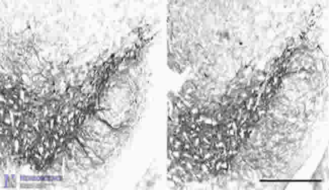 Microbutubules may play a larger role in Parkinson's disease than mitochondrial complex 1.