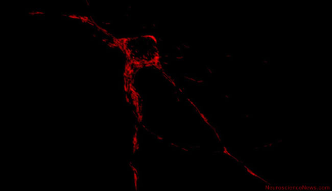An image of a neuron is shown.
