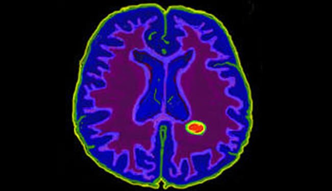 A brain scan is shown with a lesion highlighted.
