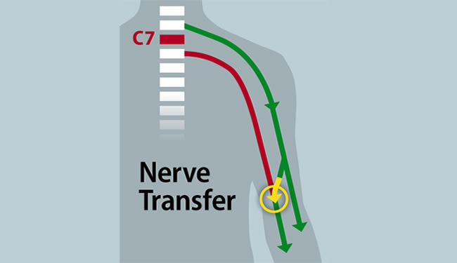 Illustration with nerve transfer and C7 drawings. Arrows lead from 2 different spinal cord areas and branches meet at elbow with original arrows continuing down lower arm.