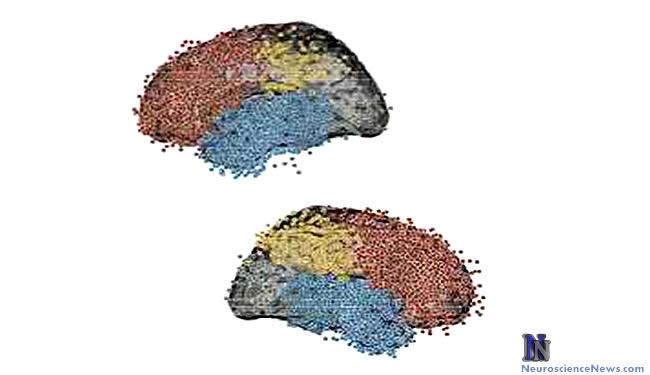 Two brain shown with elecrtrodes marked.