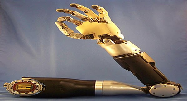 Prosthetic Arms to be Controlled by Thought - DARPA