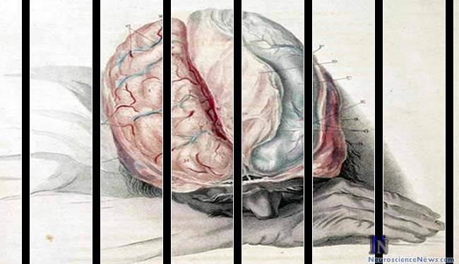 Painting of a person with his brain exposed is shown behind bars.