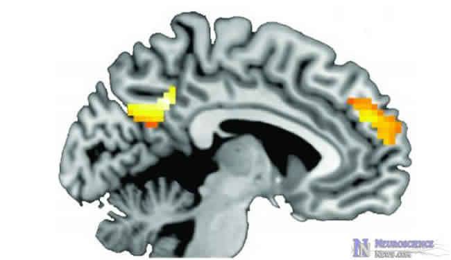 Brain image showing two different areas lit up during quit smoking messages.