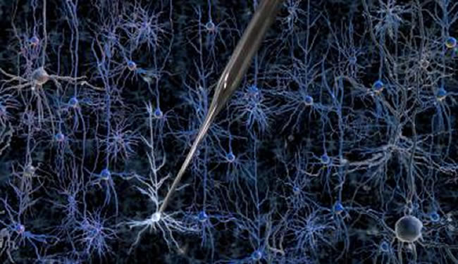 Neurons are shown with a pipette touching a neuronal cell body.