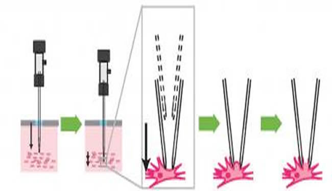An illustration is shown of an electrode being lowered into tissue. The caption explains well.
