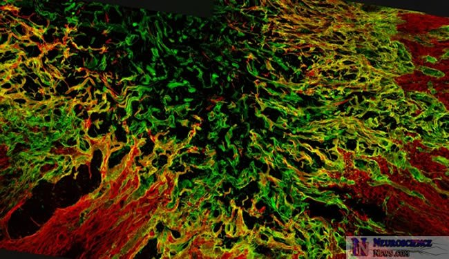 Spinal Cord Scar Tissue