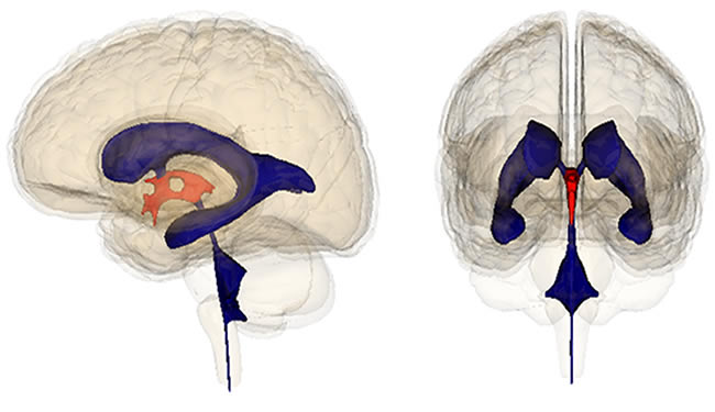 Drawings of the human brain with third ventricles highlighted.